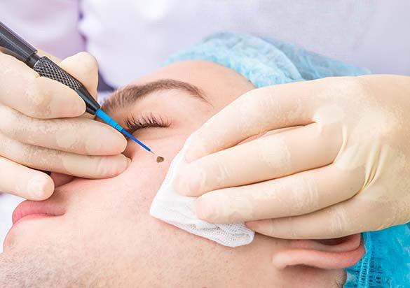 Ulanjanje dobroćudnih izraslina dermatologija